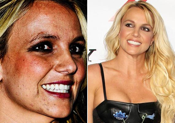 Britney Speras állán jól láthatóak a hegek, a másik képen pedig az, hogy egy jó smink csodákra képes.