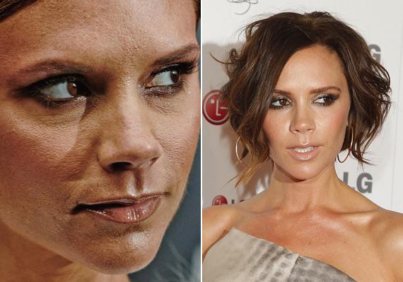 Victoria Beckham arcáról eltüntették az aknét, sokáig fehér pöttyök tarkították a bőrét a lézeres kezelés miatt, pórusai még mindig nagyon tágak, de látható, hogy ez már nagyon jól kendőzhető.
