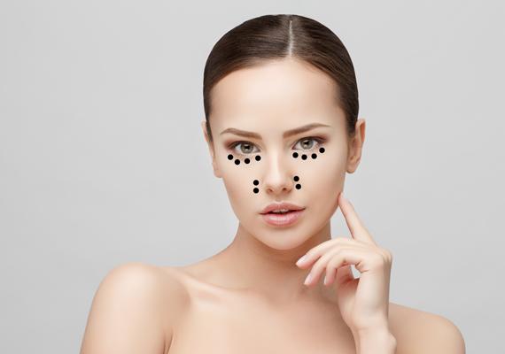 A szemek alatt és az orrgyök környékén jelentkező barnás foltok arra utalhatnak, hogy vashiányod van. Ezekhez apró, vöröses foltok is társulhatnak például a homlokon vagy a fülcimpákon.
