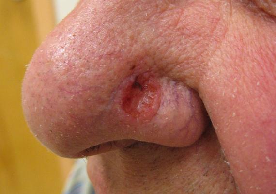 A bazálsejtes karcinóma a bőrrák egy másik változata, és ijesztő külleme ellenére a legkönnyebben gyógyítható. Egy halványvörös sebnek látszik, aminek a környékén kitágult erek láthatóak. Ha ilyet fedezel fel, fordulj orvoshoz.