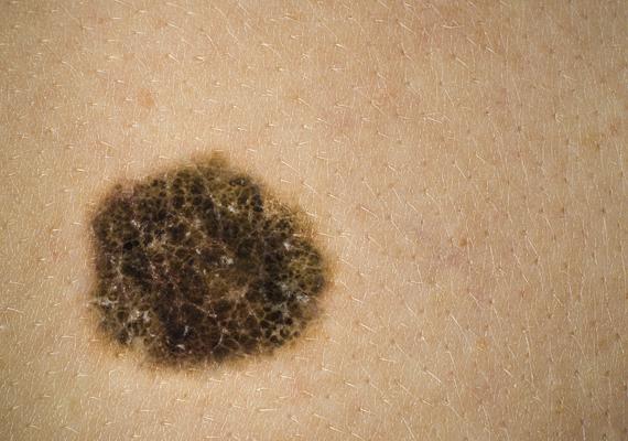 A melanoma a bőrrák egy agresszív fajtája, kialakulhat egy anyajegyből, de akár a sima bőrfelületen is. Amennyiben azt veszed észre, hogy valamelyik anyajegyed színe, alakja vagy mérete megváltozott, mindenképpen nézesd meg.