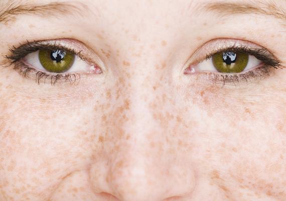 A szeplő apró, sárgásbarna folt a bőrön, enyhe festékzavart, vagyis pigmentfelhalmozódást jelent. Bár a túlzott napozás hatására is megjelenhet, egészségügyileg nem kell aggódnod miatta, csupán esztétikailag zavarhat. Ha azonban világos, érzékeny a bőröd, könnyebben leéghetsz, amiből később bajod lehet.