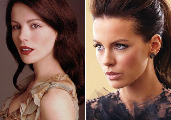 Kate Beckinsale az orrát és a járomcsontját műtette meg, és most jól néz ki, de egyedi báját elvesztette.
