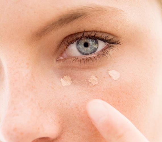 férgek és barna karikák a szem alatt