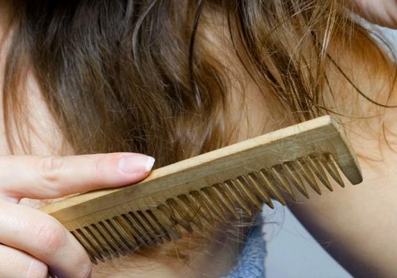 A piszkos fésűtől és hajkefétől koszos és zsíros lesz a hajad, ráadásul különböző fejbőr-rendellenességeket okozhat a használata. Ide kattintva megtudhatod, hogyan érdemes tisztítani!