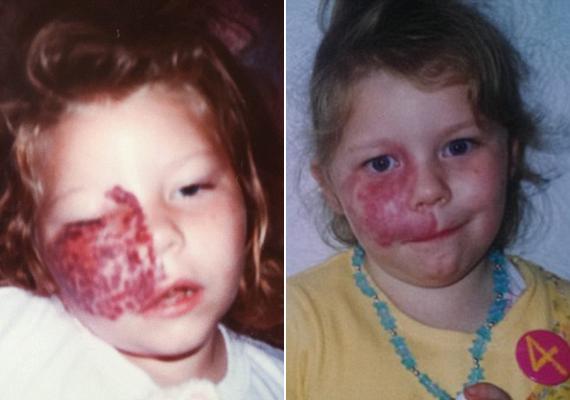 A lány kétévesen kétségbeesetten próbálta letörölni az arcáról a nagy anyajegyet. Az édesanyja szíve megszakadt, amikor látta ezt. A többi szülő féltette a gyermekét tőle, nehogy elkapjanak valami fertőzést.