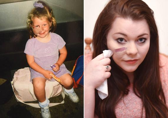 Lauren 16 lézeres kezelésen esett át, hogy kisebbítse a foltot, de sikertelenül. Megfogadta, hogy többé nem fedi el az arcbőrét.