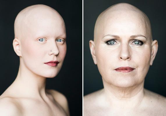 A portrék alanyai alopéciában szenvednek, ami egy autoimmun betegség. A fehérvérsejtek megtámadják a hajtüszőket, így a haj nem nő tovább, végül pedig kihullik. Bár nem a sminktől lesz valaki nőies, segíthet abban, hogy annak érezhesse magát.