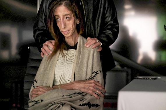 Lizzie születésekor az orvosok félve mondták el szüleinek, hogy a lányuk alig több egy kilónál, és rettenetesen fest. Édesanyja azonban hevesen követelte, hogy Lizzie-t hozzák be a szobába, hiszen nem számít, miként néz ki, akkor is az ő lányáról van szó. Ez a háttér sokat segített a nőnek mostani önmaga felépítésében.