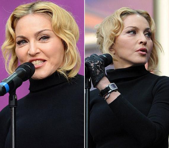 A műtétek sorozata már évekkel ezelőtt elkezdődött, de az utóbbi két-három évben vált kritikussá a helyzet. Madonna arca egyre csak torzabb. A képen 54 évesen láthatod, a Sound of Change jótékonysági koncerten.