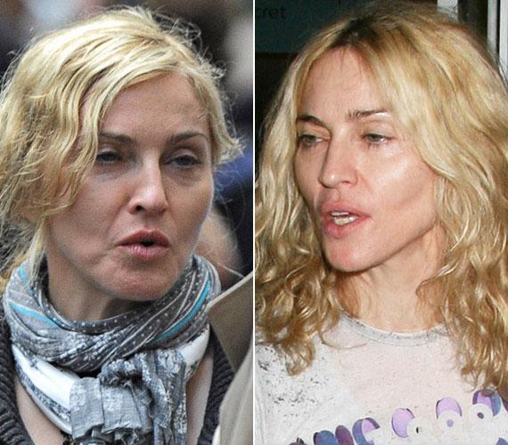 Már évekkel ezelőtt is látszottak, smink nélkül különösen, a kritikus pontok - például az áll környéke vagy az arccsontél -, ahol hozzányúltak Madonna arcához, és persze az is, hogy felette is eljárt az idő.
