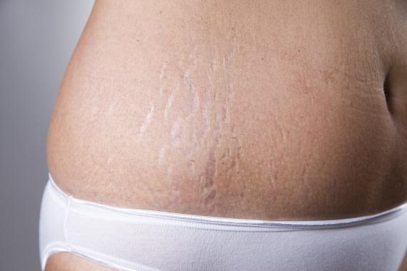 A kollagén a szervezet egyik legfontosabb fehérjéje. Mintegy harmadában egy aminosavból, a glicinből áll, amelyet a szervezet az egészséges DNS-szálak alkotásához használ. A máj számára nélkülözhetetlen a glicin, hiszen ez védi meg a különböző károsodásoktól - például az alkoholtól -, míg a glicin hiánya a bőrön is erősen meglátszik, hiszen az megereszkedik, veszít rugalmasságából, és korai ráncok, striák alakulnak ki.