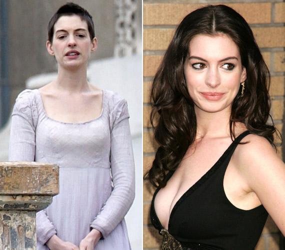 Anne Hathaway a Nyomorultak miatt fogyott le, de jó példa arra, hogy néhány kiló plusszal a nők szexisebbek.