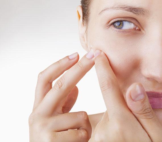 A szappan szárító hatása miatt a bőr még több faggyút termel, így nem oldja meg a zsíros bőr problémáját, sőt. A fokozott zsírosodás mellett vízhiány alakulhat ki.