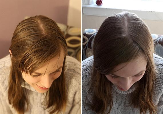Margaret Badore a lustaság miatt döntött amellett, hogy hanyagolja a samponhasználatot, ugyanis olyan nyűgnek tartotta, mint például a szőrtelenítést. Az első hét volt számára a legnehezebb, a haja egyre jobban zsírosodott, és ez az önbizalmát is megtiporta. Egy hónap után döntött úgy, hogy a szódabikarbónás öblítést bevállalja, azóta csak így tisztítja a haját - ennek már két éve. A két kép a két állapotot mutatja be: vagyis a mosás nélkülit és a szódabikarbónást.