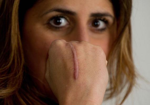 A nők különösen szégyellik az olyan hegeket, amelyek valamilyen jól látható, feltűnő helyen vannak. Ugyanakkor ezek a sebek naponta képesek emlékeztetni arra, hogy megvívtad a saját csatáidat.