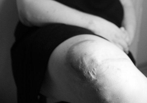 A térddel és a csípővel kapcsolatos orvosi beavatkozások szintén jól látható heggel járnak, de elkeseredés helyett érdemes inkább arra gondolni, hogy a műtét hozzásegített egy egészségesebb, aktívabb és feltehetően sokkal boldogabb élethez.