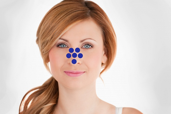 Az orron található pórusok erőteljes gyulladása érrendszeri problémák előjele lehet, sőt, a túlzottan sok fehérje fogyasztása is itt ütközik ki. Emellett érdemes azt is leellenőrizni, hogy a sminkeléshez, arcápoláshoz használt termékeid nem jártak-e le, hiszen ez is csúnya gyulladásokat okozhat.