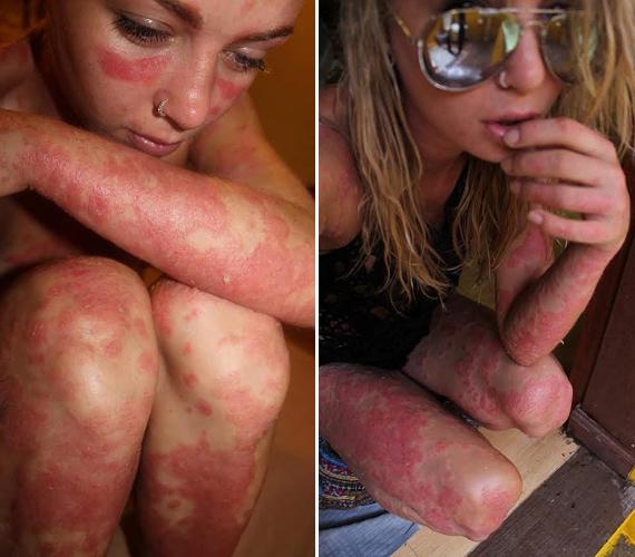 A lánynak nagyon durva pikkelysömöre van, testének körülbelül 80%-át borítják a vörös foltok. Bár a látvány sokkoló, Giorgia nem módosított a fotókon, hiszen éppen az a célja, hogy megmutassa a valóságot.