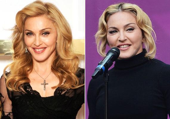 Madonna szegény annyira hajszolja a fiatalságot, hogy nem ismer mértéket. Nem volt elég, hogy szexi negyvenesnek nézzen ki, inkább lufiszerűre fújatta az arcát.