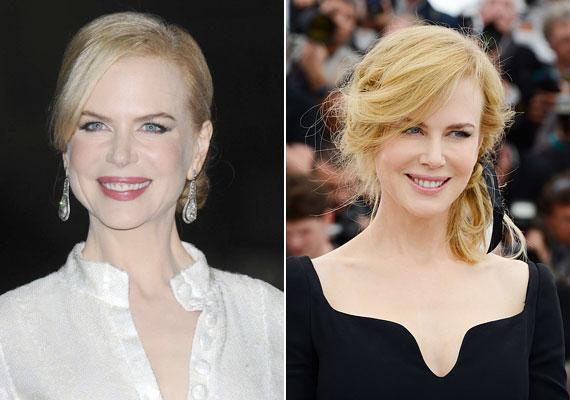 Nicole Kidman jól néz ki, de a túlzott botoxhasználat miatt egy idő után nem nagyon kapott szerepet. A jobb oldali, idén Cannes-ban készült képen látszik, hogy természetesebb a mosolya. Ennek meg is lett az eredménye.
