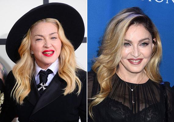 Madonna kétségbeesetten szeretne úgy tenni, mintha 20 éves lenne. A 2014-es Grammy Awardson nemcsak aranyfogaival, hanem puffadt, szétcsúszott arcával is feltűnést keltett. Idei képén sokkal jobban néz ki, valószínűleg kíméletesebb eljárásokhoz fordult.