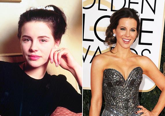 Kate Beckinsale is alig múlt 20 éves, amikor átszabatta az arcát. Bár most is nagyon szép, egykori bájosan finom vonásainak már nyoma sincsen.