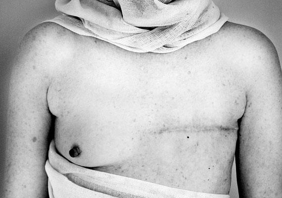 Wendyn radikális masztektómiát hajtottak végre. Ő nem vállalta az arcát, de teste mindennél többet elmond.
