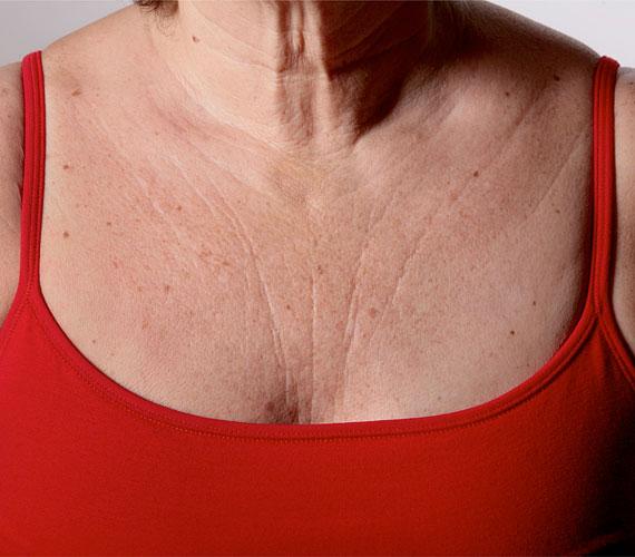 A bőr öregszik, ez természetes folyamat, a dekoltázson azonban a többi testrészhez képest kevés a faggyúmirigy, így nem is zsírozódik magától a bőr, a szárazság pedig a ráncok legjobb barátja. A kollagéntermelés csökkenésével pedig a bőr rugalmasságából is veszít, és a gyűrődések mentén a bőr betörik, és kialakul a ránc.