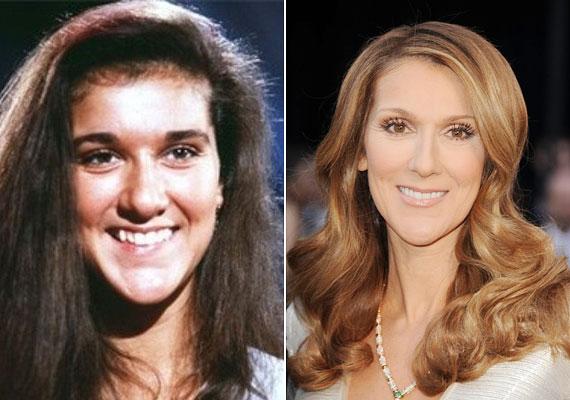 Céline Dion szabályosabb arcot szeretett volna, faragtatott az orrából és az állából, mégsem vesztette el arca egyéni jellegét.
