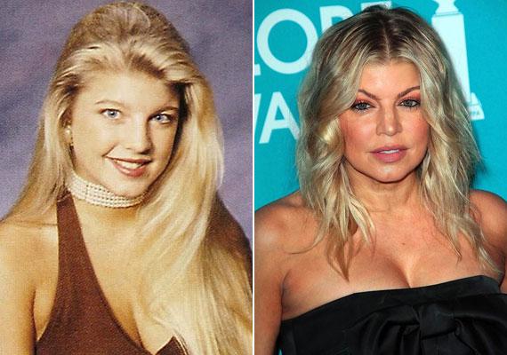 Fergie megemeltette a szemöldökét, az orrát és a száját is megcsináltatta, de a sebészek leginkább a drog és az alkohol jeleit próbálják folyamatosan eltüntetni az énekesnő arcáról. Plasztika helyett inkább a függőségét kellett volna időben kezeltetnie.