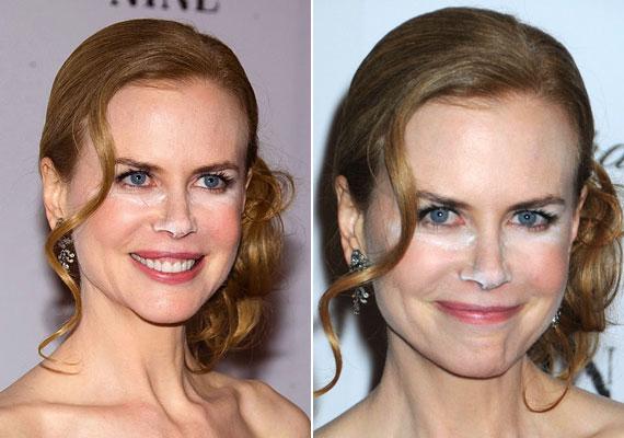 Nicole Kidmanről azt híresztelték, hogy kokainozik, pedig egészen másba ütötte az orrát.