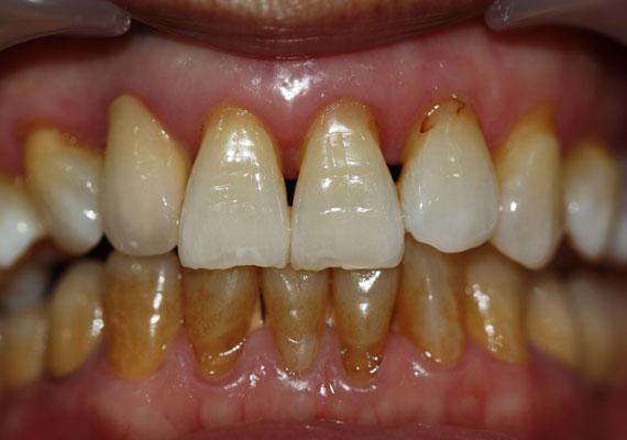 A dohányzás ráadásul nem csak sárgítja a fogakat. A dohányban lévő kátrány vékony réteget képez a fogakon, amin könnyen megtelepednek a baktériumok. A sok füstölgés ínygyulladást és fogszuvasodást is előidézhet.