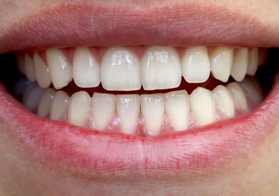 A fogcsikorgatás is káros: az állkapocs helytelen tartása miatt hosszú távon az egész arcod küllemére kihatással lehet, és még fejfájást is okozhat. Arról nem is beszélve, hogy csikorgatás közben megsérülhet a fogzománc, érzékennyé válhat.