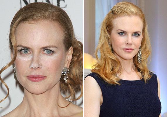 Amikor a bal oldali kép megjelent, sokan találgattak, hogy vajon Nicole Kidman kokainozott-e a bemutató előtt, de aztán kiderült, hogy a sminkes csinált hülyét szegény színésznőből, aki az esetek többségében nagyon jól fest.