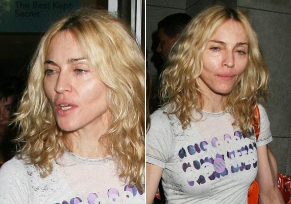 Szegény Madonna kétségbeesetten kergeti a fiatalságot, itt jól látszanak az arcimplantátumok és az, hogy jobb lenne szépen megöregedni.