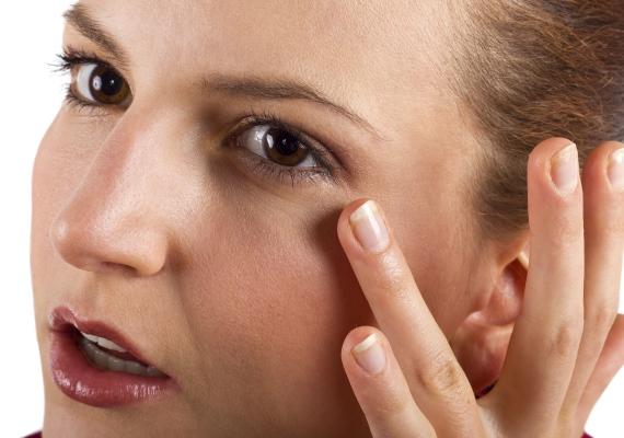 Sápadt szemhéj vagy zsíros lerakódásokA sápadt szemhéj többek között utalhat kimerültségre, allergiára, de okozhatja oxidatív stressz is. Az utóbbival úgy szállhatsz szembe, ha kerülöd a feldolgozott élelmiszereket - mint például a chipset -, így elérheted, hogy a bőröd egészségesebbnek és kevésbé puffadtnak hasson. Ha zsíros lerakódásokat észlelsz a szemeid körül, akkor is érdemes változtatnod az étkezéseden!