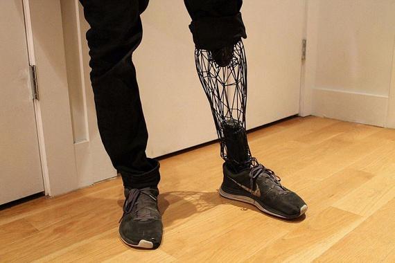 Így néz ki az Exo Prosthetic: élethű formájának köszönhetően a ruha takarásában senki sem mondaná meg, hogy gazdája protézist visel.
