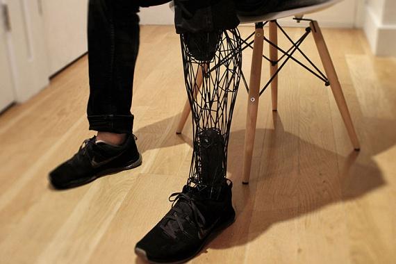 A páciensek ráadásul egyéni igényekre szabhatják a protézist, kiválaszthatják a színét, és alakíthatnak a formáján.