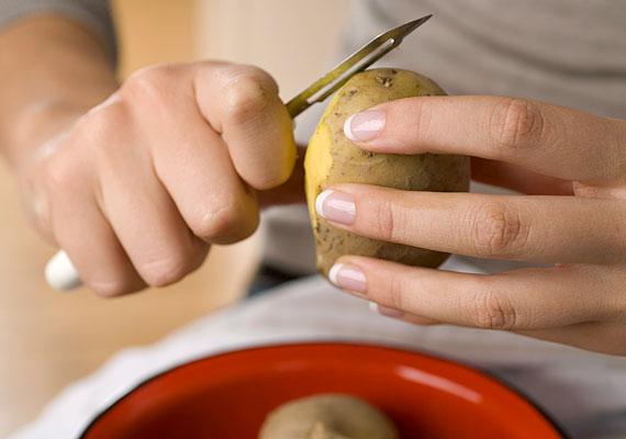 Ha a karikák inkább kékes-lilás színűek, reszelj le egy fél krumplit, töltsd egy kis gézcsomagba, majd tedd a szemedre, és dőlj vissza még tíz percre.