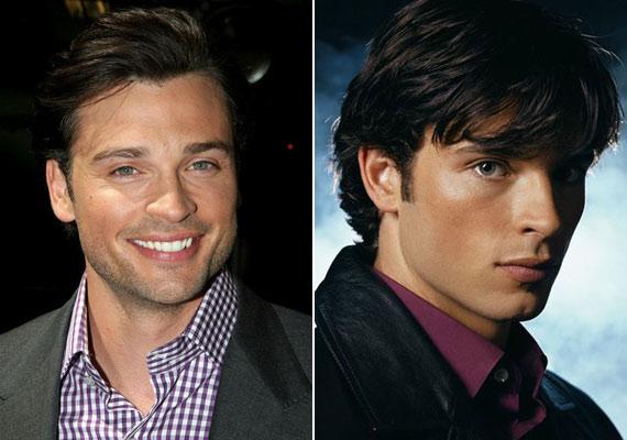 24 évesen 18 éveset játszani még nem olyan nagy szám, de Tom Welling a Smallville legelső epizódjában a 14 éves Clark Kentet formálta meg.