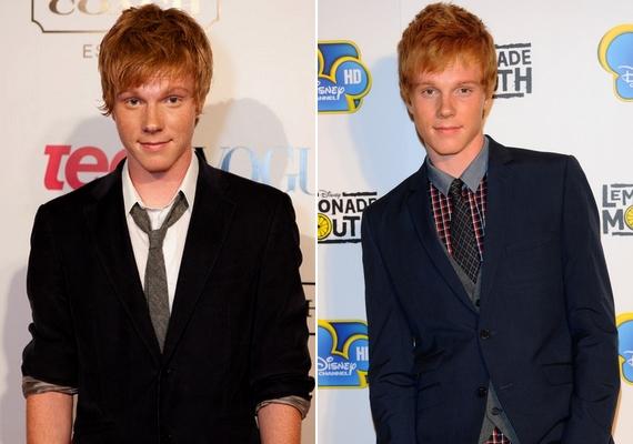Így néz ki most Adam Hicks: bár jellegzetes szeplői és vörös haja a régi maradt, a vonásai sokat változtak.