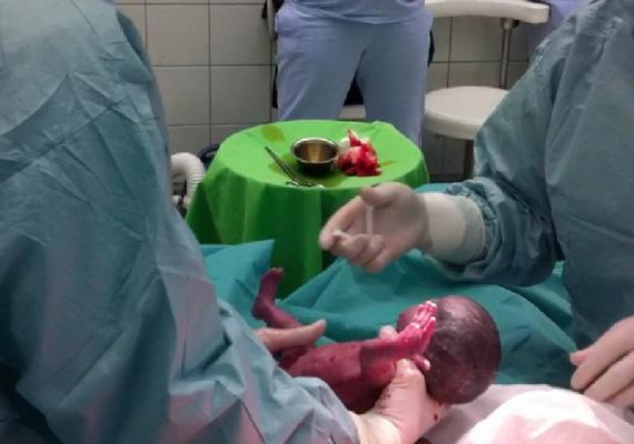 A baba a terhesség 20. hetében nevet kapott a családtól. Ezután a kórház dolgozói nevén szólították a babát, beszéltek hozzá, ezen kívül a rádió is folyamatosan szólt a kórteremben.