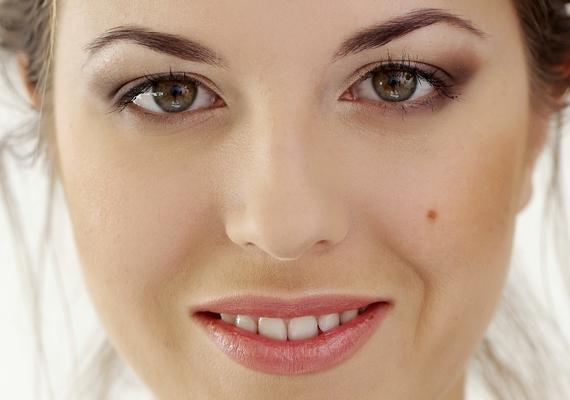 Az arcon anyajegyek pirosak - Méz a pikkelysömörhöz