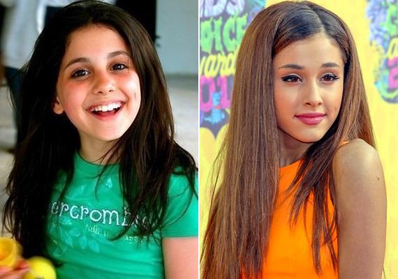 A kiskori képei és a legújabb fotók közt hatalmas a különbség, mintha nem is ugyanaz a lány lenne.
