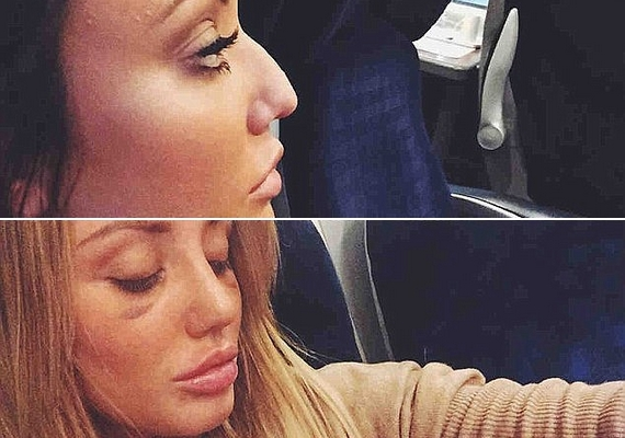 Egy héttel ezelőtt az orrplasztikájának eredményét is megmutatta az Instagramon.