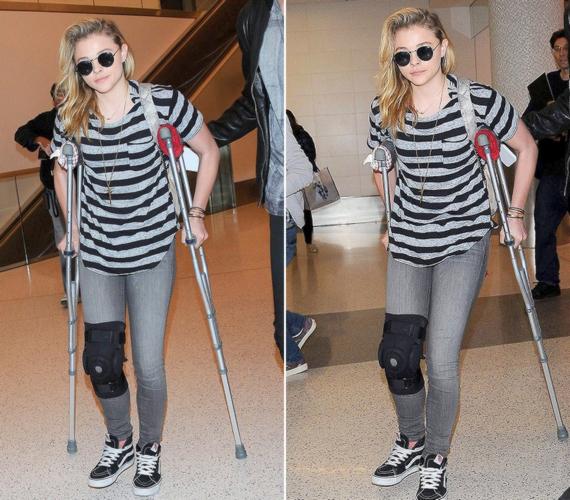 Egy nappal a díjátadó előtt még mankóval és sínbe tett térddel fotózták a színésznőt a reptéren.