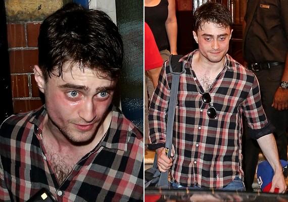Daniel Radcliffe-et a minap csapzott külsővel kapták le a lesifotósok.