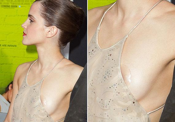 Emma Watsonnak valószínűleg fogalma sincs, mit fényképeznek a szemfüles fotósok.