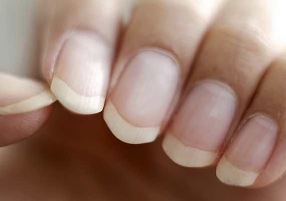 A besárgult, körömlakkfoltos körmöket újból kifehérítheted és egészséges színűvé varázsolhatod, különösen akkor, ha fehérítős fogkrémet használsz. Kend be vele a felületüket, majd dörgöld körömkefével néhány percig, és mosd le.